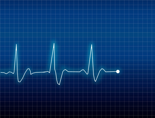 SHUTTERSTOCK ECG Electrocardiogram