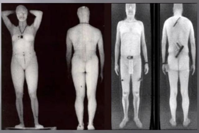 рентгеновские фото голых