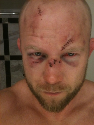 Boetsch_face
