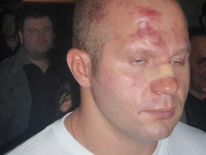 Fedor4_20_medium_-thumb-500x375