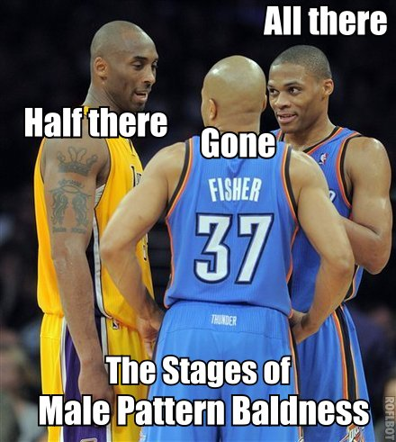 Lakermalepatternbaldness_medium