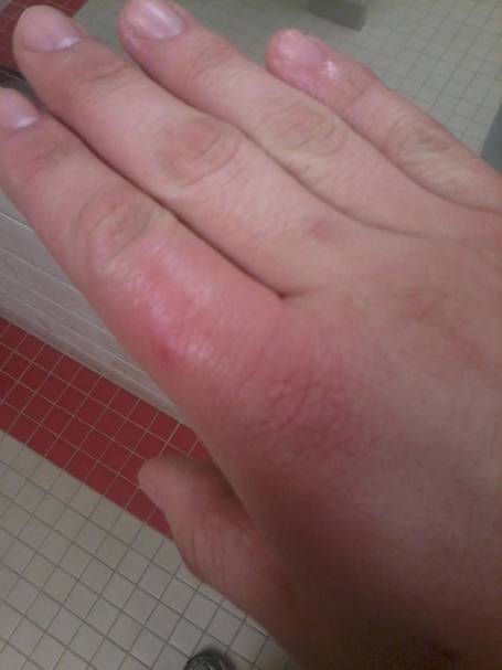 most swollen finger ever