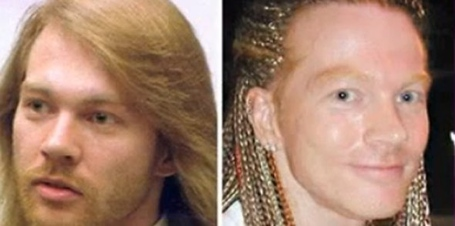 Guns-n-roses-50-year-old-frontman-axl-rose-reportedly-got-cheek-implants-and-a-facelift_medium