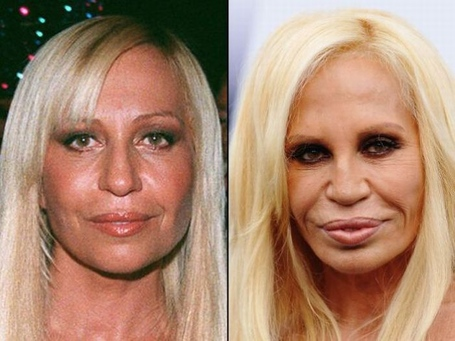 Celebrities_before_and_after_plastic_surgery_21_medium