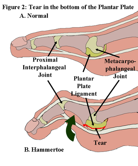 121106-plantar-plate-sprains-tear_medium
