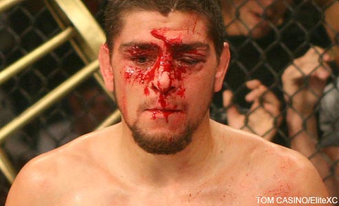 Nick Diaz EliteXC
