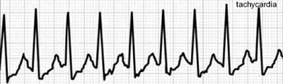 Tachycardia_medium