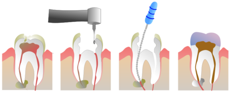 Root_canal_medium