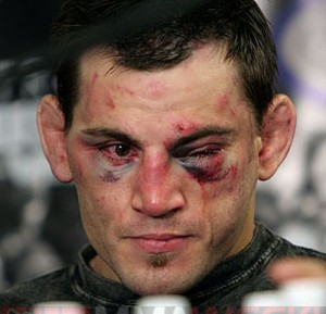 Jon_fitch-300x289_medium