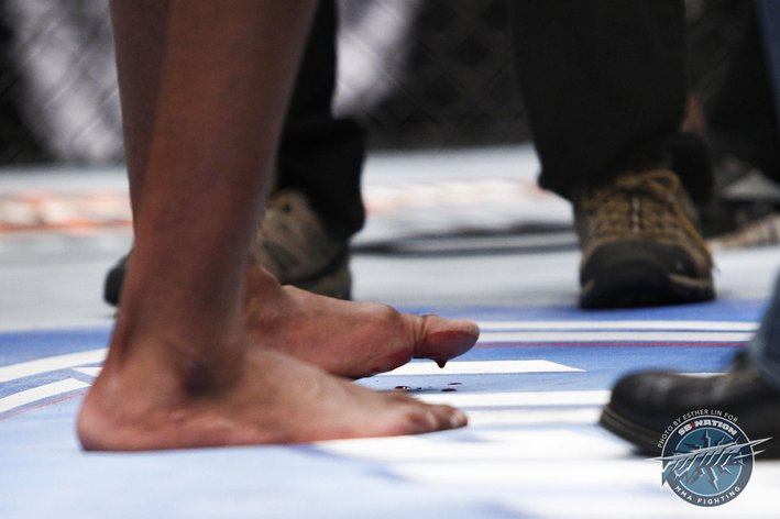 Jon Jones Broken Toe Video